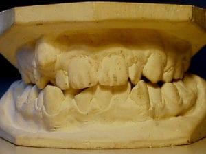 nyc dentist invisalign mold